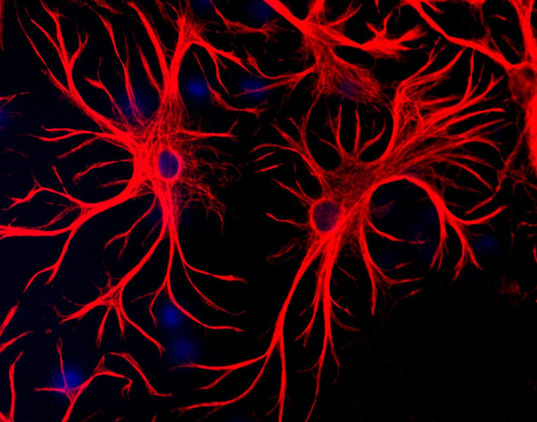 Polyclonal Antibody to Glial Fibrillary Acidic Protein, GFAP