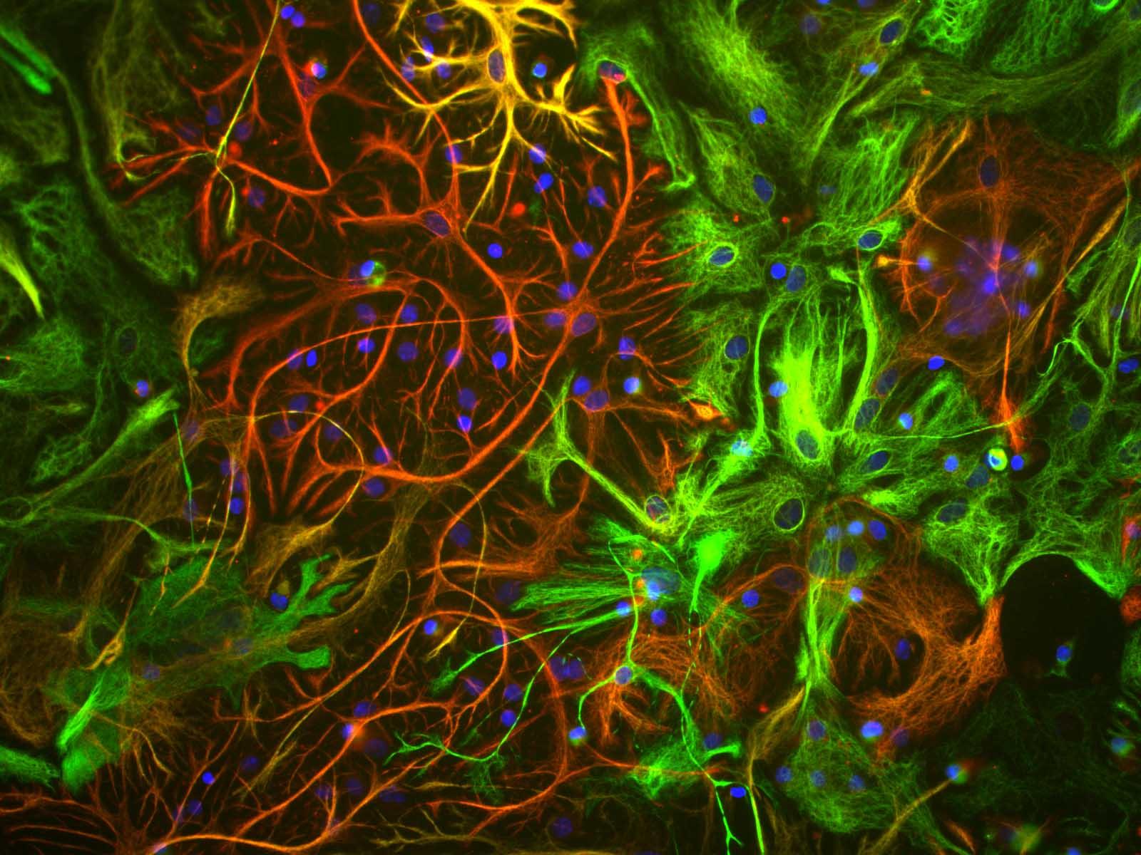Monoclonal Antibody to Vimentin  (Clone: 2D1)