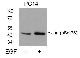 Polyclonal Antibody to c-Jun (Phospho-Ser73)