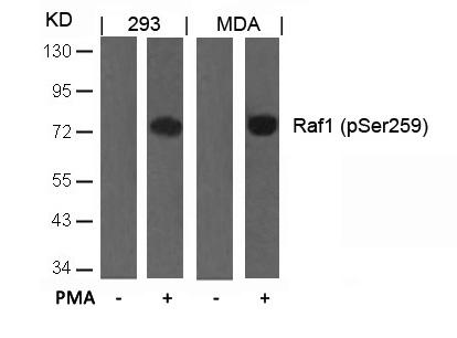 Polyclonal Antibody to Raf1 (Phospho-Ser259)