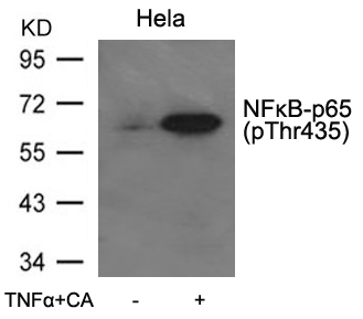 Polyclonal Antibody to NFkB-p65(Phospho-Thr435)