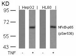 Polyclonal Antibody to NFkB-p65 (Phospho-Ser536)