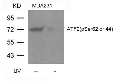 Polyclonal Antibody to ATF2 (Phospho-Ser62 or 44)