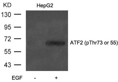 Polyclonal Antibody to ATF2 (Phospho-Thr73 or 55)