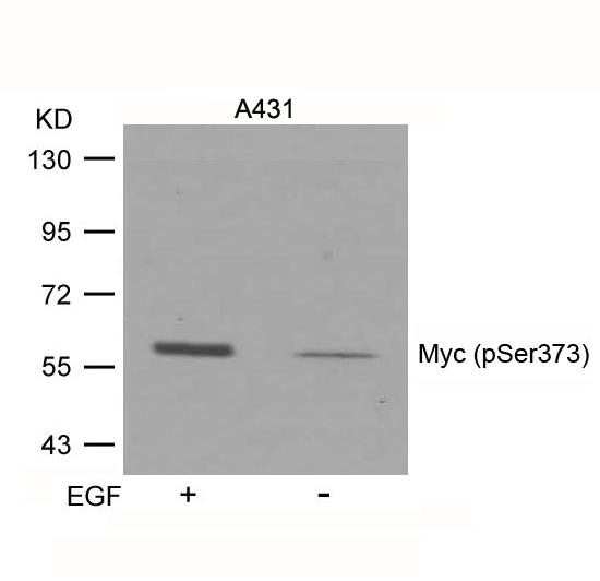 Polyclonal Antibody to Myc (Phospho-Ser373)