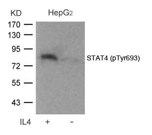 Polyclonal Antibody to STAT4 (Phospho-Tyr693)