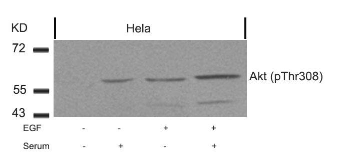 Polyclonal Antibody to Akt (Phospho-Thr308)