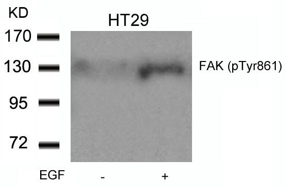 Polyclonal Antibody to FAK (Phospho-Tyr861)