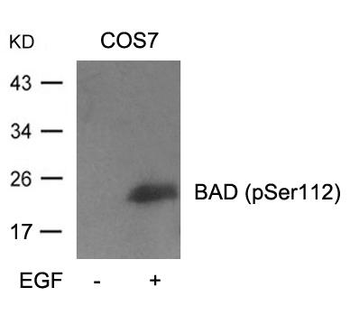 Polyclonal Antibody to BAD (Phospho-Ser112)