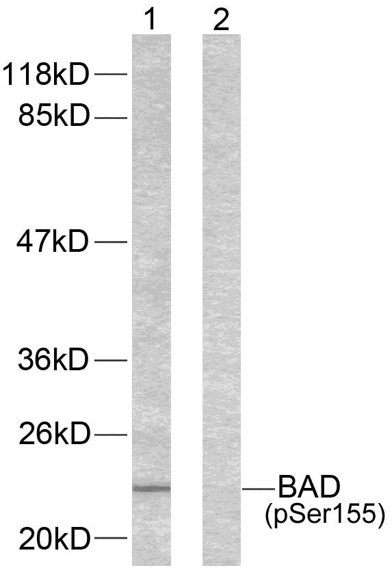 Polyclonal Antibody to BAD(Phospho-Ser155)