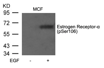 Polyclonal Antibody to Estrogen Receptor- Alpha (Phospho-Ser106)