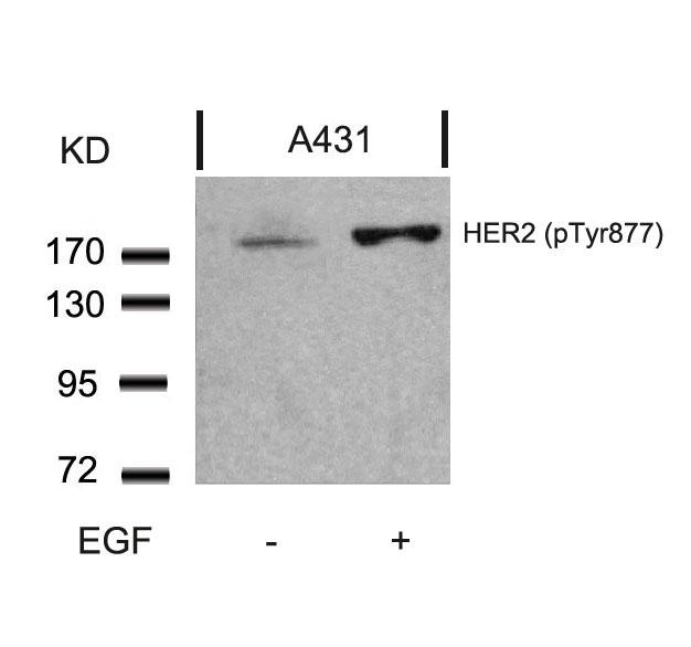 Polyclonal Antibody to HER2 (Phospho-Tyr877)