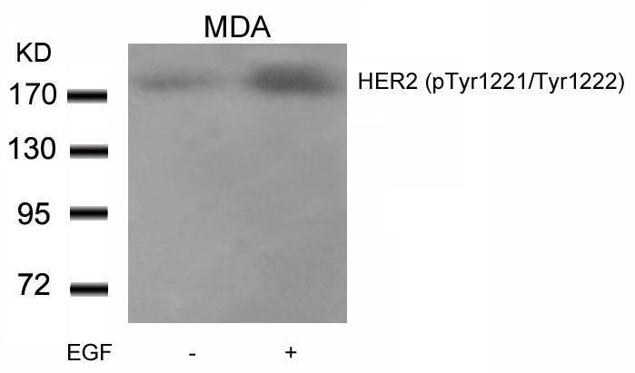 Polyclonal Antibody to HER2 (Phospho-Tyr1221/Tyr1222)