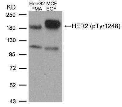 Polyclonal Antibody to HER2 (Phospho-Tyr1248)