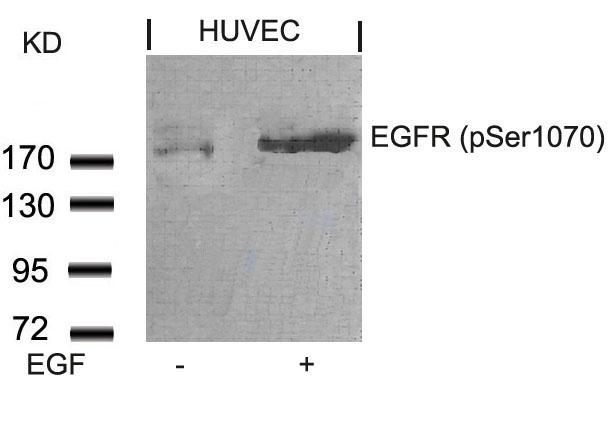 Polyclonal Antibody to EGFR (Phospho-Ser1070)