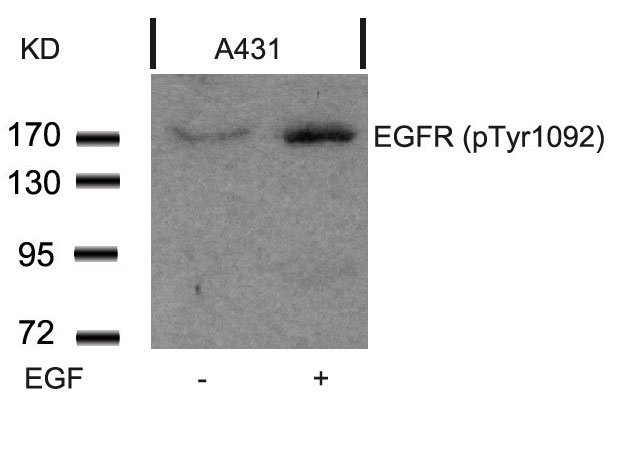 Polyclonal Antibody to EGFR (Phospho-Tyr1092)