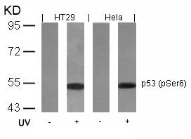 Polyclonal Antibody to p53 (Phospho-Ser6)