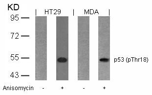 Polyclonal Antibody to p53 (Phospho-Thr18)
