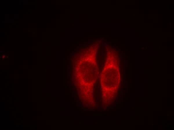 Polyclonal Antibody to p53 (Phospho-Ser37)
