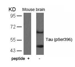 Polyclonal Antibody to Tau (Phospho-Ser396)