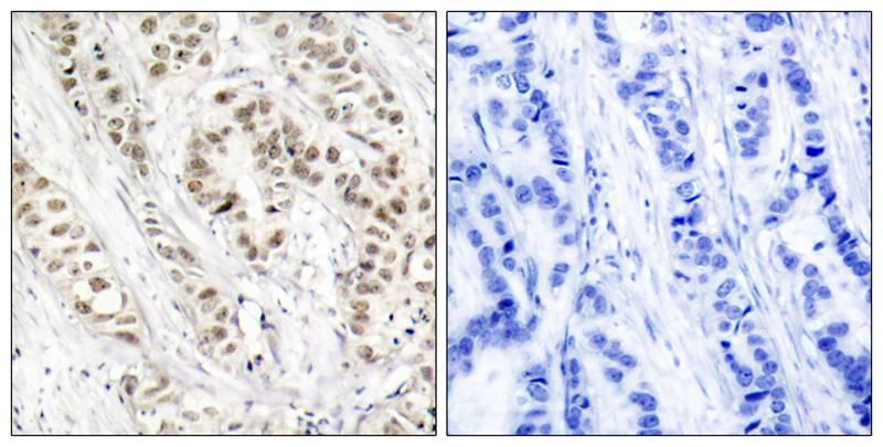 Polyclonal Antibody to BRCA1 (Phospho-Ser1524)