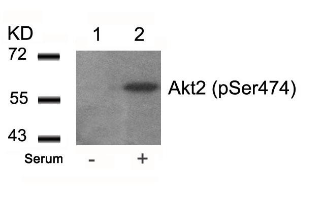Polyclonal Antibody to Akt2 (Phospho-Ser474)