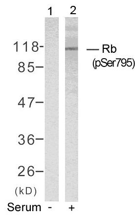 Polyclonal Antibody to Rb (Phospho-Ser795)