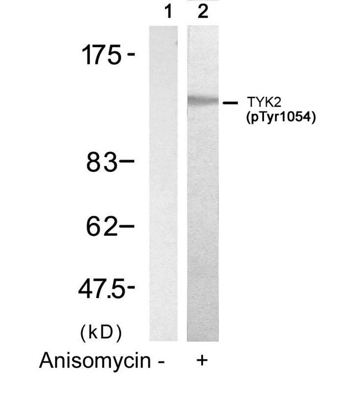 Polyclonal Antibody to TYK2 (Phospho-Tyr1054)