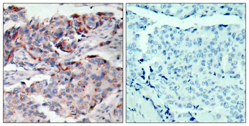 Polyclonal Antibody to JAK2(Phospho-Tyr221)