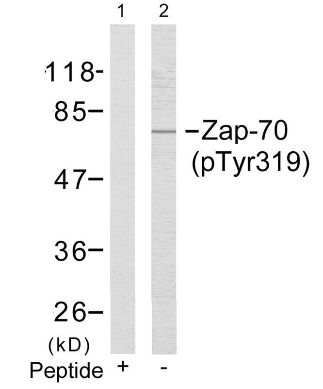 Polyclonal Antibody to Zap-70 (Phospho-Tyr319)