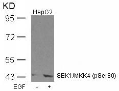 Polyclonal Antibody to SEK1/MKK4 (Phospho-Ser80)