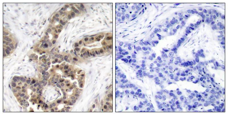 Polyclonal Antibody to p21Cip1 (Phospho-Thr145)