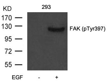 Polyclonal Antibody to FAK (Phospho-Tyr397)