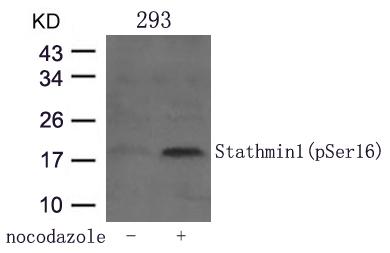 Polyclonal Antibody to Stathmin 1 (Phospho-Ser16)