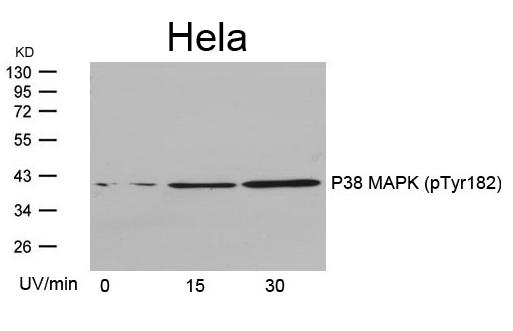 Polyclonal Antibody to P38 MAPK (Phospho-Tyr182)