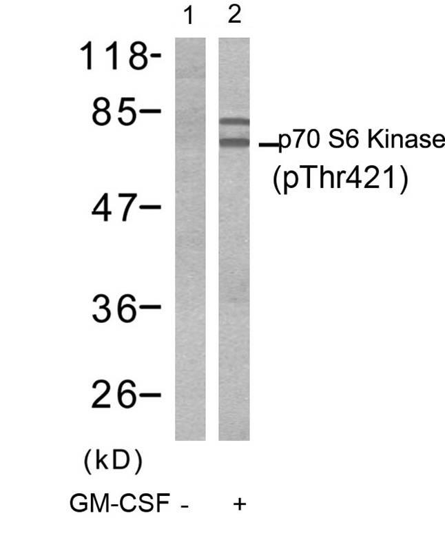 Polyclonal Antibody to p70 S6 Kinase (Phospho-Thr421)