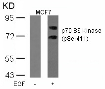 Polyclonal Antibody to p70 S6 Kinase (Phospho-Ser411)