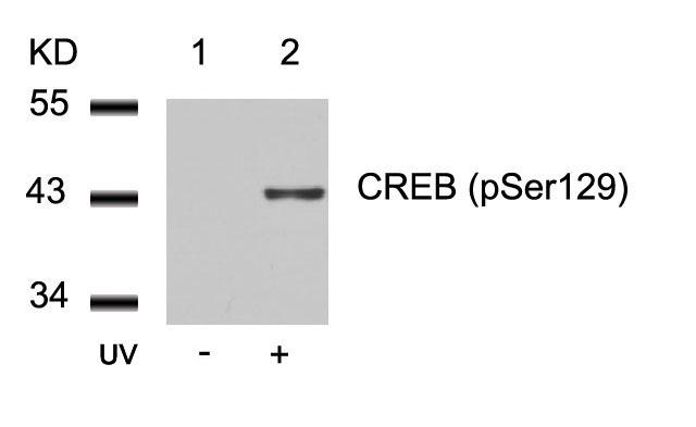 Polyclonal Antibody to CREB (Phospho-Ser129)