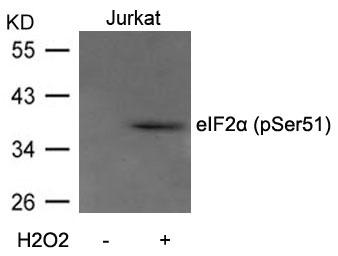 Polyclonal Antibody to eIF2 Alpha (Phospho-Ser51)