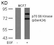 Polyclonal Antibody to p70 S6 Kinase (Phospho-Ser424)