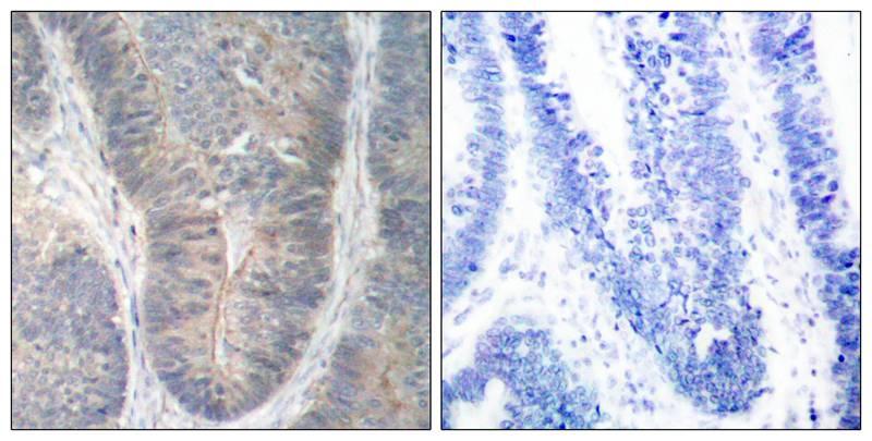 Polyclonal Antibody to PKR (Phospho-Thr451)