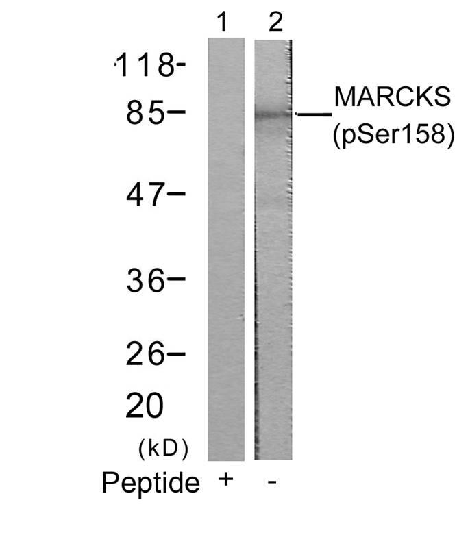 Polyclonal Antibody to MARCKS (Phospho-Ser158)