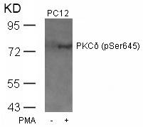 Polyclonal Antibody to PKC Delta (Phospho-Ser645)