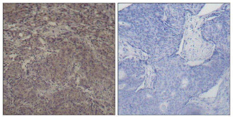 Polyclonal Antibody to CREB(Phospho-Ser142)