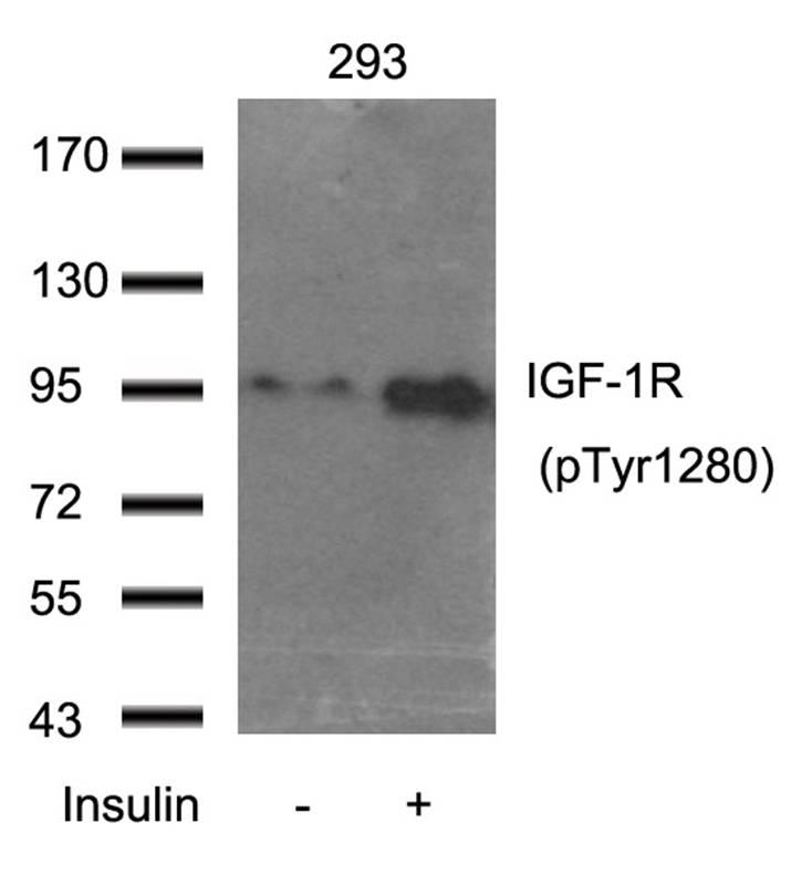Polyclonal Antibody to IGF-1R (Phospho-Tyr1280)