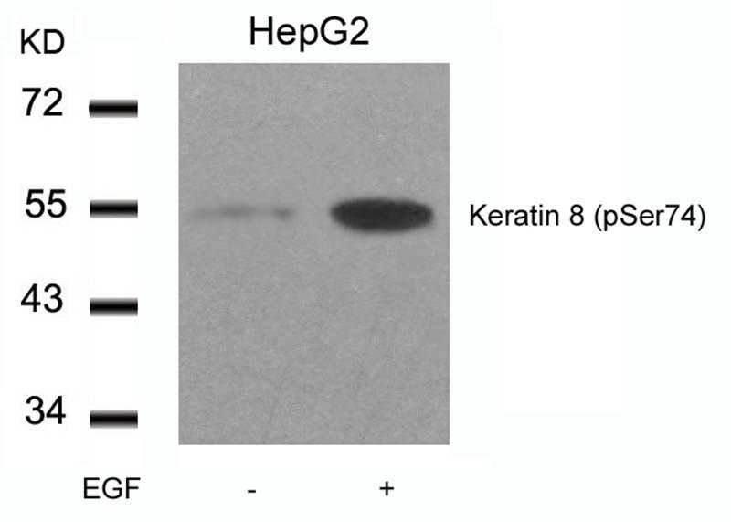 Polyclonal Antibody to Keratin 8 (Phospho-Ser74)