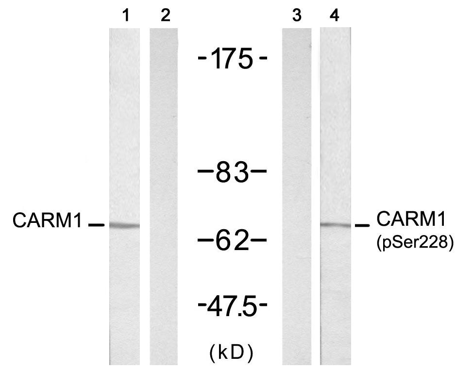 Polyclonal Antibody to CARM1(Phospho-Ser228)