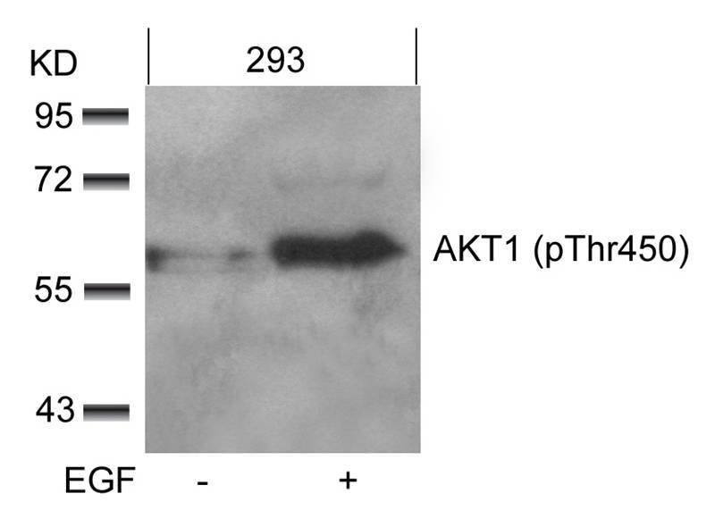 Polyclonal Antibody to AKT1 (phospho-Thr450)