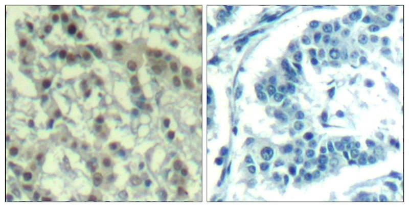 Polyclonal Antibody to Aurora A (phospho-Thr288)