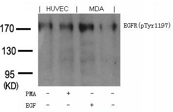 Polyclonal Antibody to EGFR (phospho-Tyr1197) Goat Polyclonal